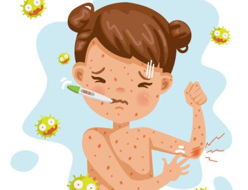 Measles, Mumps, Rubella, & Varicella
